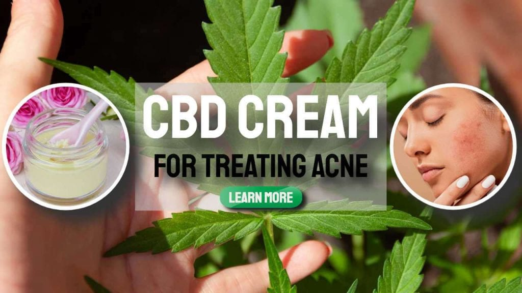CBD Cream for Treating Acne and Other Anti-Aging Tips
