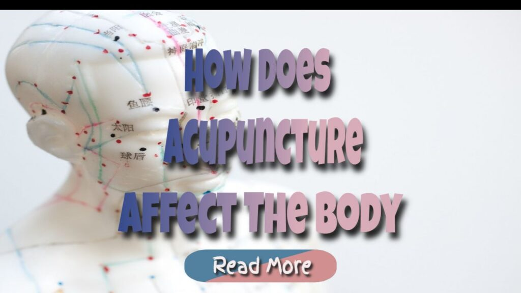 What Conditions May Benefit From Acupuncture?